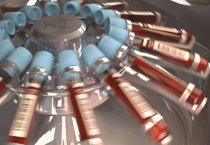 centrifugación de muestras de sangre